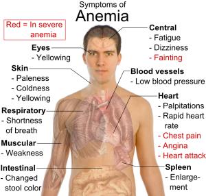 Symptoms_of_anemia